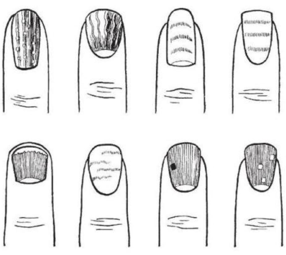 Хиромантия ногти